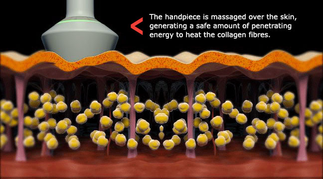Collagen Fibres are Heated