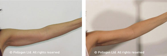 Arm Tightening