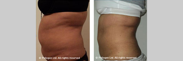 Tummy Circumference Reduction